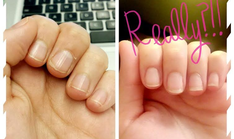 reparare unghii